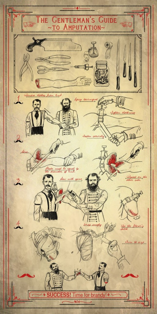 gentlemans_guide_to_amputation